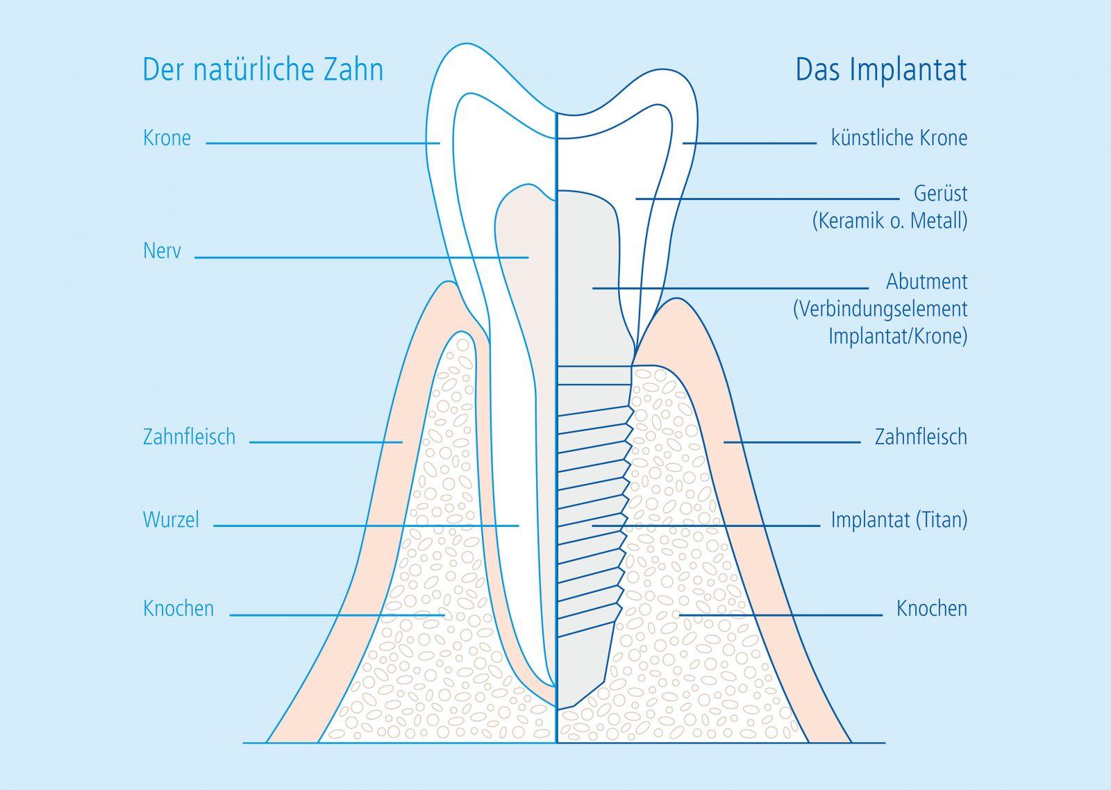 Vergleich Zahn vs Implantat