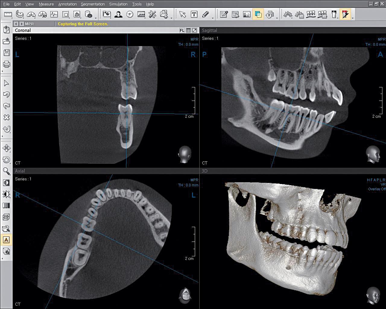 Röntgenbild Kiefer