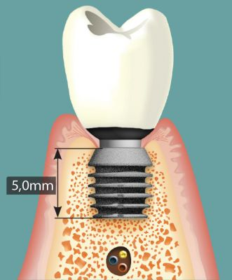 Short Implant